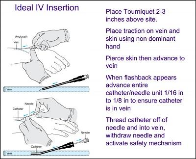 35 iv therapy tips   tricks for nurses nursebuff iv veins diagram Tips On Finding a Vein