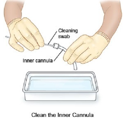 cleaning of inner cannula