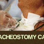 tracheostomy care