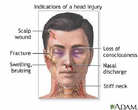 first aid for head trauma or injury