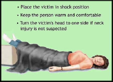 first aid for shock