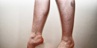 how nurses can prevent varicose veins
