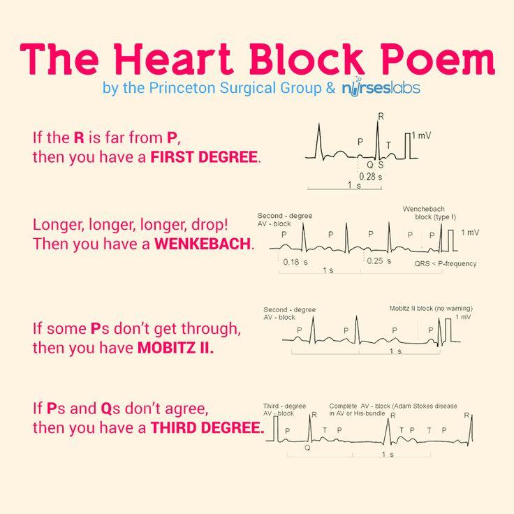 cardiac arythmias